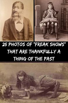 """25 Tragic Photos Of Vintage """"Freak Show"""" Performers From """"Elastic Man"""" To """"Lobster Boy"""" Most Popular, Popular Pins, All In One, The Past, New Pins, Weird, Movie Posters, Beautiful, Vintage"""