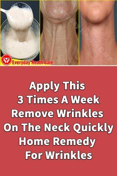 Facial Skin Care, Anti Aging Skin Care, Natural Skin Care, Facial Masks, Natural Cures, Anti Aging Treatments, Skin Treatments, Home Remedies For Wrinkles, Wrinkle Remedies