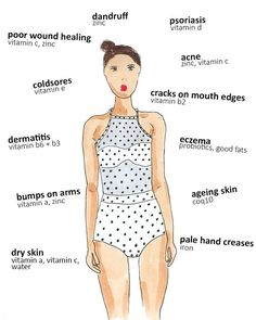 OURR SKIN IS THE LARGEST ORGAN OF OUR BODY There are lots of interesting things you can tell about your health just by taking a glance at your skin. Check out our list of skin conditions and what nutritional signs they're giving you below. Vitamins For Psoriasis, Vitamins For Skin, Psoriasis Diet, Health Vitamins, Health And Nutrition, Health And Wellness, Health Fitness, Fitness Life, Health Care