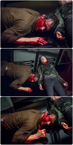 Will Graham bloody face
