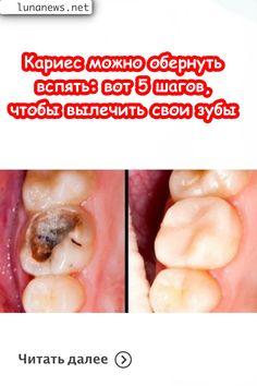 Healthy Tuna, Healthy Eating, Oral Health, Health Tips, Receding Gums, Oral Hygiene, Teeth Cleaning, Dental Care, Health Fitness