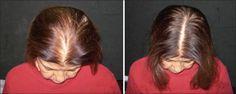 ما هو علاج الشعر بالكولسترول و طريقة تحضيره؟