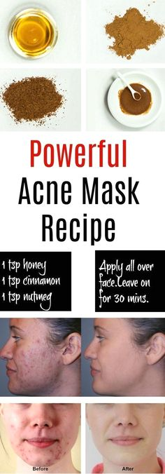 Natural Skin Care Ritual: the 13 Best Ingredients – Dr. Axe Natural Skin Care Ritual: the 13 Best Ingredients – Dr. Axe,personal care Honey-and-cinnamon mask for acne treatment Related posts:Home affaire Boxspringbett. Body Acne, Acne Skin, Acne And Pimples, Acne Scars, Pimples Overnight, Overnight Hair Mask, Clear Skin Overnight, Home Remedies For Acne, Skin Care Products