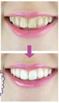 10 easy, at-home remedies for teeth whitening → http://youtu.be/dylFI-P-gGg