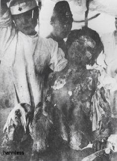 Victims of the Nagasaki and Hiroshima bombs