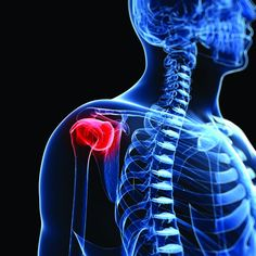 How to prevent rotator cuff injuries through corrective exercise programming (Part 1) - NASM Blog