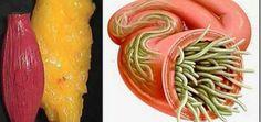 La consommation de grandes quantités de bonbons crée un atmosphère de mucus qui est parfait pour propager le parasite. La propagation de champignons et de bactéries est disponible en raison de cet environnement. Le médicament pour l'élimination des dépôts de graisse et les parasites de votre corps Ingrédients: -100 grammes de graines de lin -10 […]