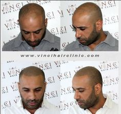 Micro Scalp Pigmentation. Great results from Vinci Hair Clinic in Beirut!  Book your free consultation - We have clinics worldwide! http://www.vincihairclinic.com/locations/