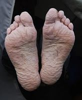 Trench Foot - A Common Ailment of Hikers - The main rule is to never tolerate cold, wet feet. This starts with planning your activity and choosing appropriate footwear. Boots and shoes should fit well (and not squeeze the feet), insulate for the cold, and keep socks dry. Because any boot can become saturated if conditions are wet enough, consider using vapor barrier socks for your dampest slogs. Or, you can improvise these by using plastic bags to line your boots.
