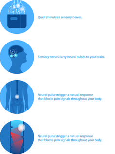 Quell: The Worlds First Pain Relief Wearable | Indiegogo