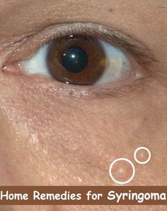 Home Remdies for Syringoma (Bumps under Eyes)