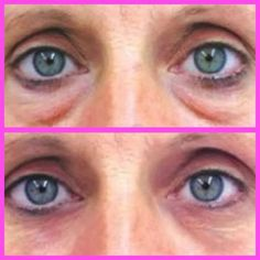 49989a3a391 Unrevealed Secrets to Get Rid of Under Eye Dark Circles and Puffy Eyes  Black Bags Under