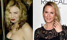 Renee Zellweger face spark plastic surgery rumours: We look at her ...