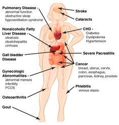 Diagram of what stress does to a mother - Google Search