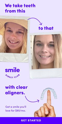 Are you a candidate? Get a smile you'll love with clear aligners for $85/mo with SmileDirectClub. Take the 30-sec quiz to see how it works.