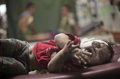 Un niño herido en el ataque a la escuela de la Onu el 30 de julio de 2014, llora mientras es atendido en un hospital.  KHALIL HAMRA (AP)