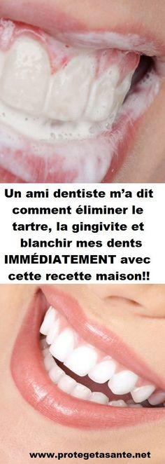 Un ami dentiste m'a dit comment éliminer le tartre, la gingivite et blanchir mes dents IMMÉDIATEMENT avec cette recette maison!!