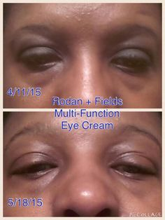 """My friend Christine shared her friend Sheila's results. She said """"Sheila began to develop under-eye puffiness and dark circles. She'd tried many products before R+F but none of them worked. She was skeptical about trying out Multi-Function Eye Cream, but now she's convinced that IT WORKS and she can't wait to see her 60 day results!!! SO exciting!!!"""" Sheila results are amazing! http://iarman.myrandf.com"""