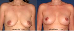 Breast Lift Vertical