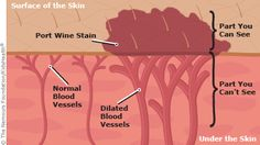port wine stain illustration