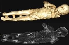 "Pompeii Victims' Bodies Revealed in Scans:  ""Working with these casts was extremely moving, it felt like I was dealing with real patients,"" Giovanni Babino, the radiologist in charge of the project said."