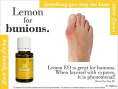Young Living's Lemon essential oil is one of those oils that is so versatile. There are just SO many uses for it, so I will go ahead and categorize those uses by application methods. Yl Oils, Lemon Essential Oils, Essential Oil Uses, Doterra Essential Oils, Natural Essential Oils, Natural Oils, Natural Beauty, Young Living Oils, Young Living Essential Oils