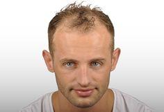 Hair Transplant Results - ASMED