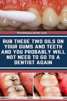 Rub These Two Oils on Your Gums and Teeth and You Probably Will Not Need to Go to a Dentist Again - All Herbal Things Teeth Health, Healthy Teeth, Oral Health, Dental Health, Dental Care, Health Tips, Gum Health, Dental Hygiene, Health Recipes