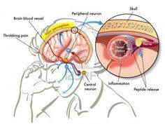 Migraine headaches | Team Essence