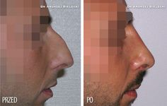 Zabieg korekcji nosa wykonuje się także u mężczyzn