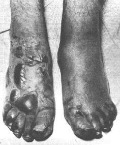 Trench foot was one of the big problems with the trenches. The men's feet would be in water for weeks and unable to get dry.