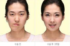 Korean Plastic Surgery Jaw Surgery