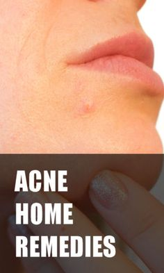 At home remedies for acne.  If you're having trouble clearing up your skin, here's what you should do.  #Acne #skincare