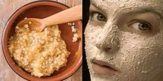Creams to Remove Face Stains - Creams to Remove Face Stains - Remove Wrinkles, Excess Face Fat, Age Spots and Lighten Your Skin In a Week - Homemade creams to remove face stains - Homemade creams to remove face stains Prévenir Les Rides, Age Spots On Face, Age Spot Removal, Hair Removal, Lighten Skin, Prevent Wrinkles, Wrinkle Remover, Tips Belleza, Flawless Skin