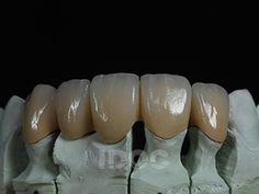 IDOC Dental Lab PFM