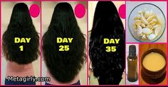 Fast Hair Growth in 30 days Ginger Hair Oil & Mask for Longer Thicker Natural Hair Stop HAIR LOSS So, just have a look at this below, leave your comments and must share on social media. We hope you like it