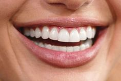 Why Is America Obsessed With Perfect Teeth? -- Science of Us
