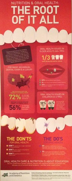 Nutrition and Oral Health Infographic. Make sure to get dental check ups twice a year to avoid oral issues that could lead to other complications. Dental Hygiene School, Oral Hygiene, Dental Assistant, Dental Hygienist, Dental Implants, Oral Health, Dental Health, Dental Care, Teeth Health