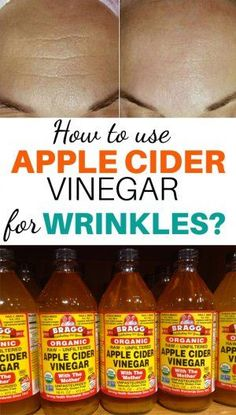 There was a time when wrinkles around eyes were considered a sign of aging. Today, no one wants to wake up in the morning and notice the fine lines over their forehead and wrinkles under the eyes. Read on to know uses of apple cider vinegar for wrinkles. Apple Cider Vinegar Remedies, Apple Cider Vinegar For Skin, Apple Cider For Face, Face Wrinkles, Prevent Wrinkles, Skin Care Remedies, Home Remedies, Wrinkle Remedies, Recipes