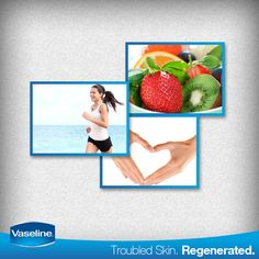Healthy diet, healthy routine and healthy skin. Do you have it all? #Vaseline