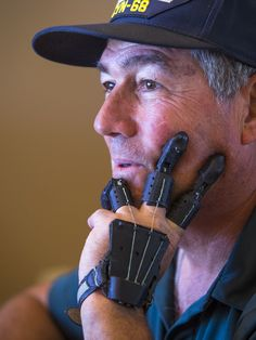 JOJO POST 3D PRIT: 3D Printed Fingers Give Hope to Accident Victim-printed-fingers