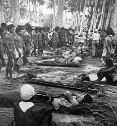 New Guinea WOUNDED AMERICAN AND AUSTRALIAN SOLDIERS waiting to be evacuated. The Native porters were recruited by the administration in New guinea, and were referred to as Fuzzy Wuzzy Angels. Many Australian troops have commented on the care and gentleness displayed by them.