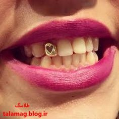 Gold Tooth Cap, Tooth Gem, Dental Jewelry, Tooth Jewelry, Girl Grillz, Different Types Of Piercings, Gold Teeth, Bad And Boujee, Body Mods