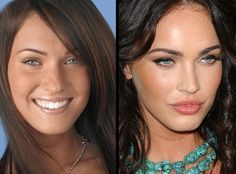 Megan Fox before and after ~ nose plastic surgery