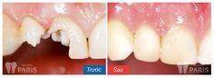 Có nên làm răng sứ cho răng bị vỡ hay không?  Trường hợp răng bị vỡ lớn, hàn trám tái tạo sẽ không bền thì bọc răng sứ được coi như một giải pháp tối ưu nhất nhằm tạo độ bền chắc và khả năng ăn nhai bình thường. Do đó, việc băn khoăn có nên làm răng sứ không là không cần thiết bạn ạ!
