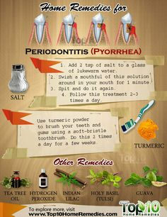 Home Remedies for Periodontitis (Pyorrhea) The onset of periodontitis is marked by bleeding of the gums. Other common signs and symptoms are bad breath, inflamed or swollen gums, mouth ulcers, formation of deep pockets between the teeth and gums, pus bet Gum Health, Teeth Health, Oral Health, Health Tips, Dental Health, Healthy Teeth, Top 10 Home Remedies, Natural Home Remedies, Home Remedies