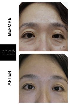 Facelift Treatment using Fotona Laser - liposuction plastic surgery Perfect Image, Perfect Photo, Love Photos, Cool Pictures, Chloe, Before After Photo, Cosmetic Procedures, Liposuction, Clinique