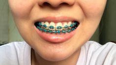 The teal braces are usually the special dental devices that are all highly beneficial to repair minor jaw and tooth related problems. Braces Bands, Braces Tips, Kids Braces, Dental Braces, Teeth Braces, Braces Transformation, Green Braces, Cute Braces Colors, Ceramic Braces
