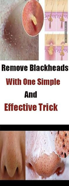 Watch This Video Effective Natural Remedies To Remove Blackheads Ideas. Irresistible Natural Remedies To Remove Blackheads Ideas. Healthy Tips, Healthy Habits, How To Stay Healthy, Healthy Drinks, Healthy Weight, Healthy Skin, Natural Home Remedies, Herbal Remedies, Health Remedies