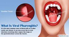What Is Viral Pharyngitis?